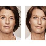 Botox, myter og fakta II