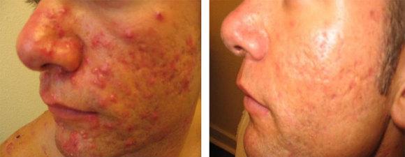 Før og etter behandling med N-Lite laser og medisinsk hudpleie
