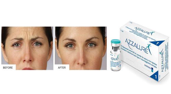 Botox-myte-I