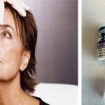 Botox mot rynker og depresjon?