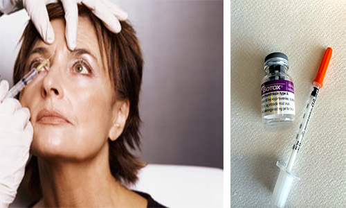 Botox-mot-migrene