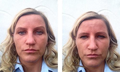Etter-botox