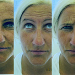 Botox er ikke lenger tabu