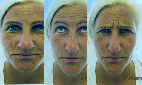 Før-botox