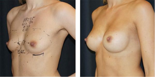 silikonpupper etter amming naken massasje