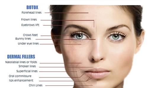 Botox-kart