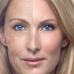 Botox – hva er det?