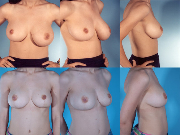 Breast-Assymetry