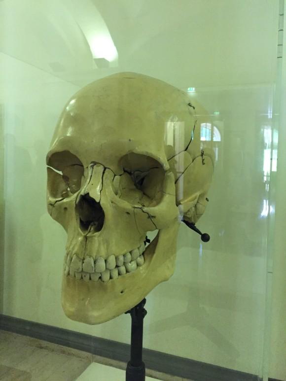 Universitetet hadde en stor samling anatomiske modeller - denne er nesten 1m høy