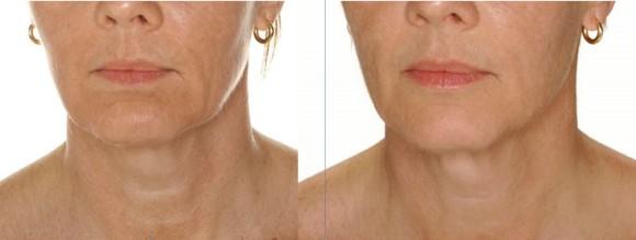Skinbooster før og etter