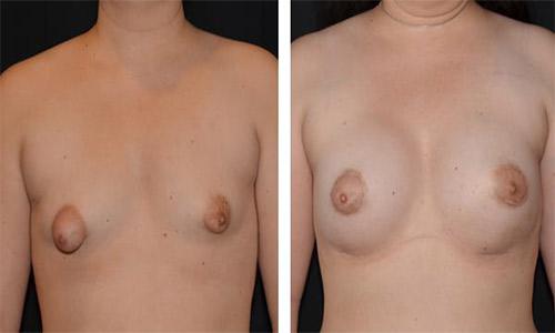 tube-bryst