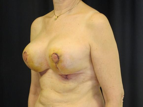 En uke etter operasjon