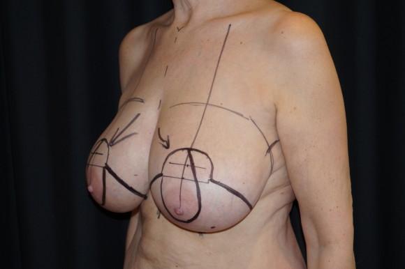 Før operasjon
