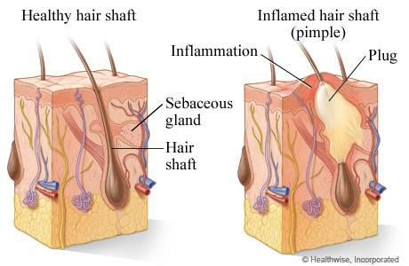 Når døde hudceller tetter porene, samles det opp talg og olje og acnebakteriene for gode vekstvilkår. Det blir betennelse og man får en kvise.