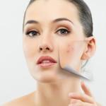Behandling av acne