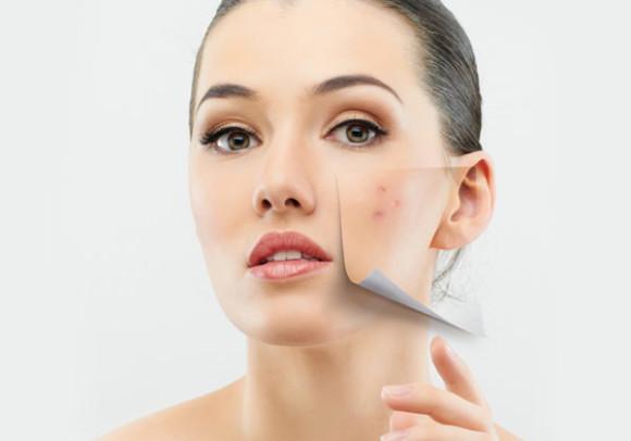 behandling av acne kan hjelpe både på som og store utbrudd  Foto: homeremediestip.com