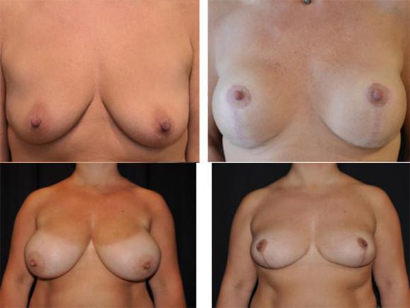 Bryst-løft-og-red