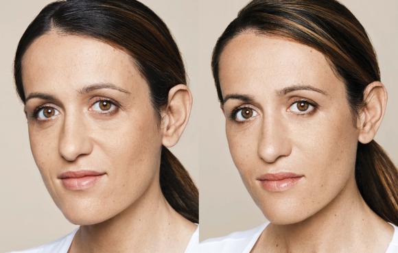 Bilde før og etter konservativ konturering av kinnben.