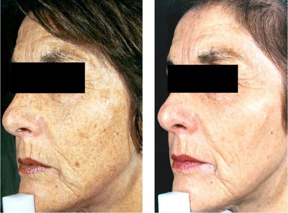 Før og etter 3 pigmentbehandlinger med IPL
