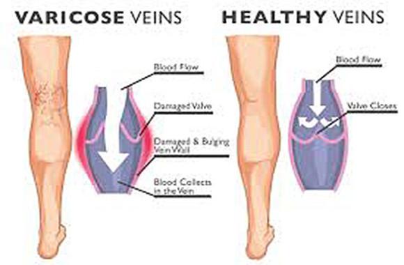 fjerne blodårer på beina