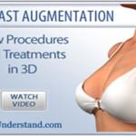 3D filmarkiv – bryst og kropp