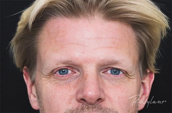 Get-Uplifted-Bjørn-før
