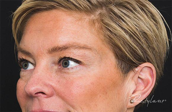 """>img src=""""alt=""""get uplifted upper face før side"""">"""