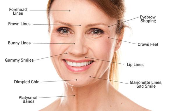 Botox-og-områder