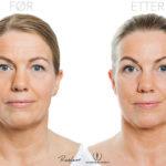 Anne Lene 47 år, før- og etterbilder