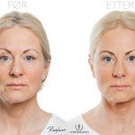 Berit 50, før- og etter injeksjonsbehandling