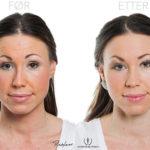 Silje 35 år, før- og etter injeksjonsbehandling