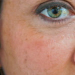 Pigmentflekker – behandling og korrigering