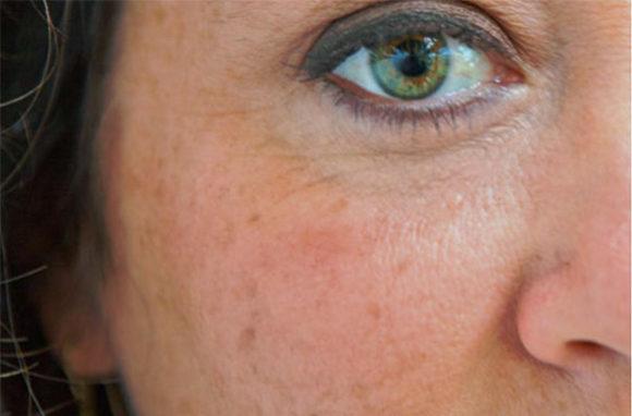 pigmentflekker